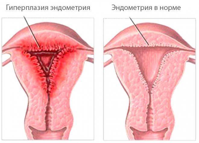 skrapning efter medicinsk abort
