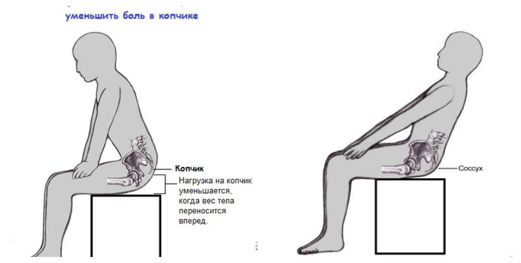 Боль при сидении копчика лечение в домашних  631